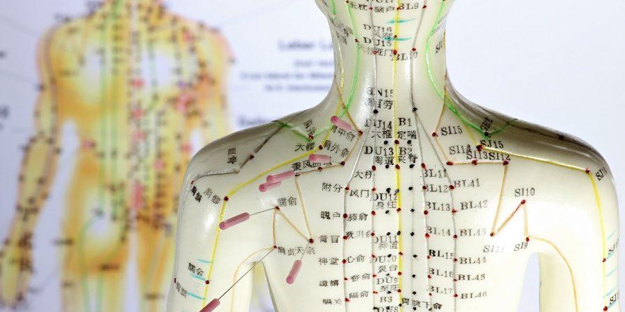 weibliches Akupunkturmodell mit Nadeln im Schulterbereich vor Le